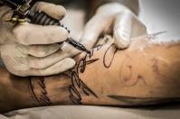 Metody usuwania tatuażu i techniki znieczulania